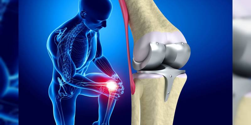 knee-joint-replacement