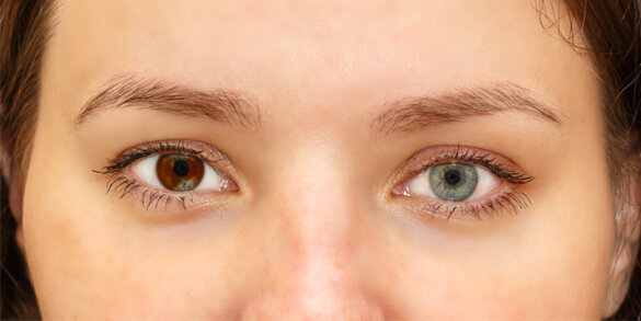 Eyes Might Change Color